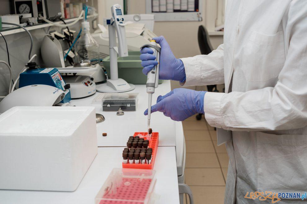Test  MediPAN 2G  Foto: materiały prasowe Instytutu Chemii  Bioorganicznej PAN